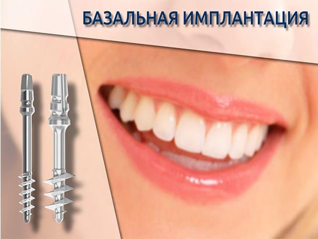Имплонтация зубов